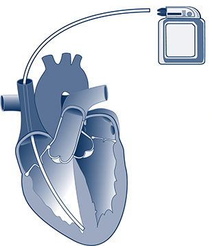 Single-chamber pacemaker