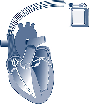 Biventricular Pacemaker (CRT-P)