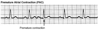 Premature atrial contractions